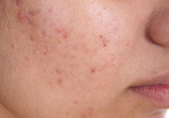 hvite talgkjertler i ansiktet